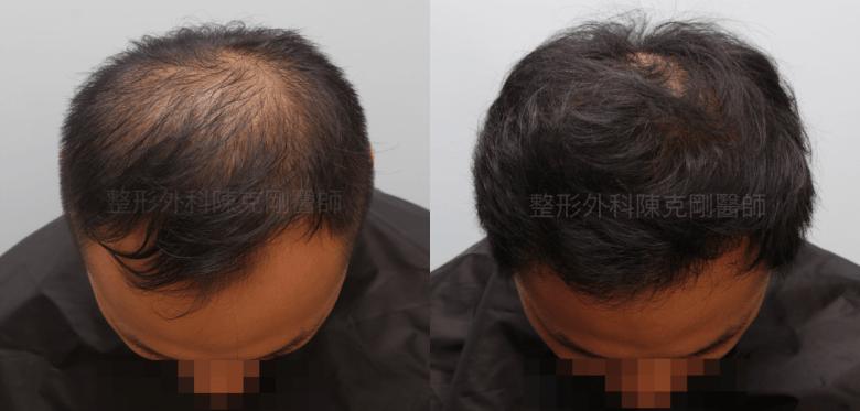 植髮合併生髮水頭頂七個月比較