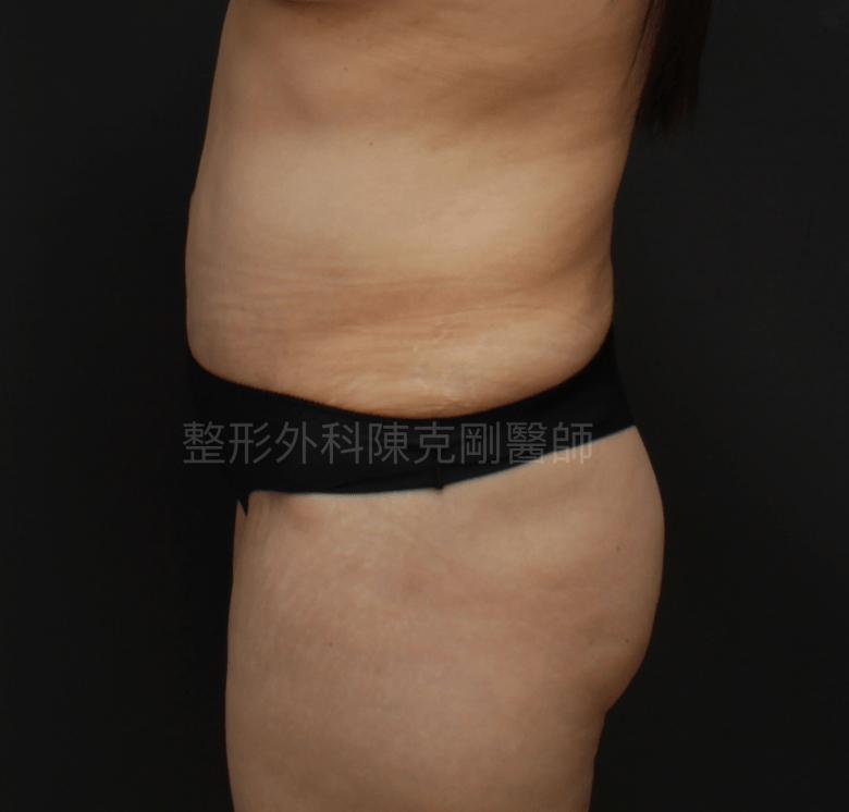 疤痕腹部拉皮術後側面
