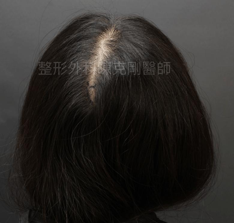 女性分線植髮後腦術前