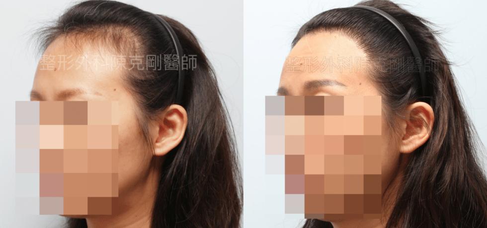 女性植髮左側45度比較