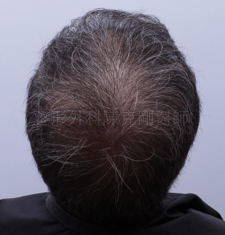 禿頂植髮頭頂第二次術後