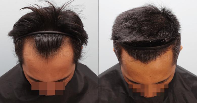 髮線植髮低頭比較