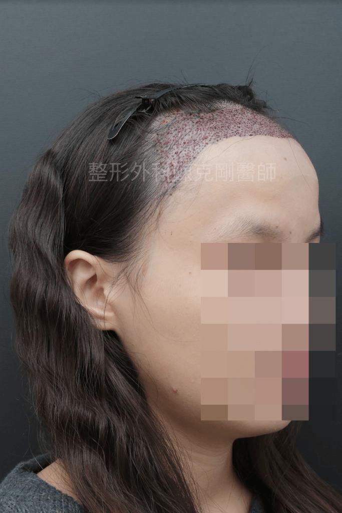 女性髮際線植髮45度術後立即