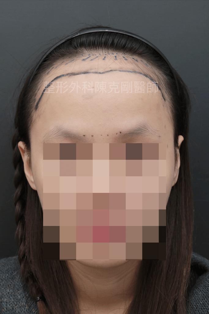 女性髮際線植髮正面畫線