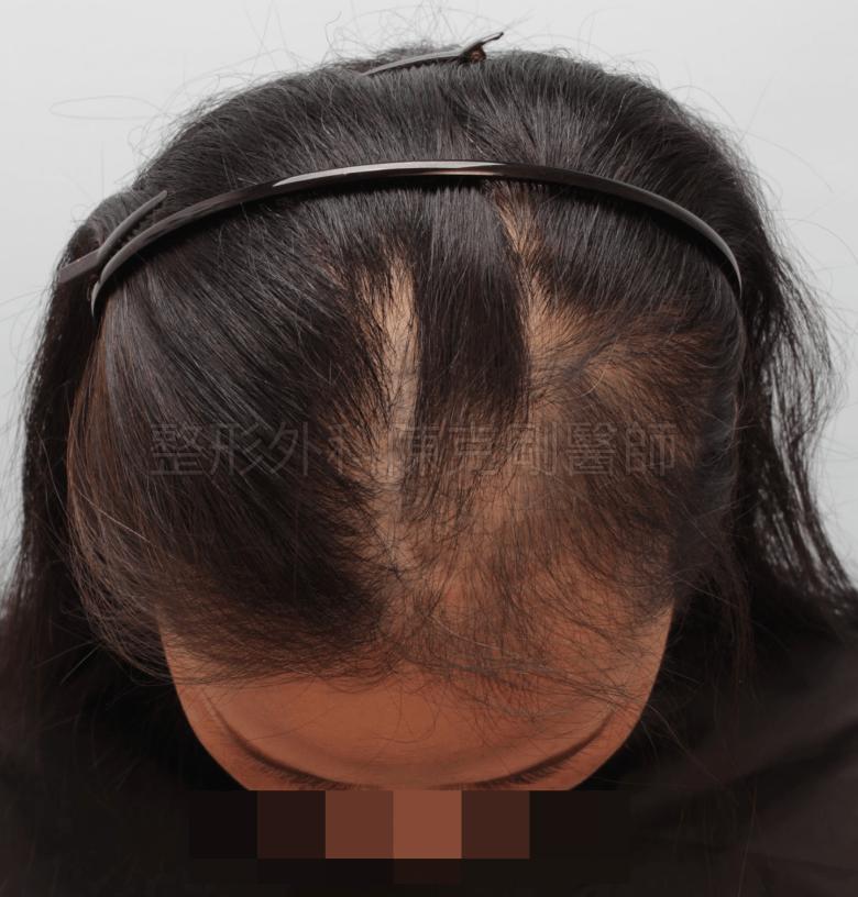 放射線治療後落髮 植髮術前 低頭