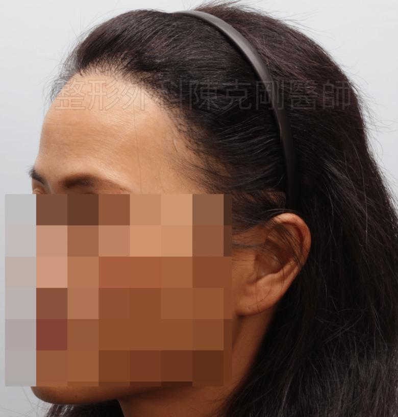 放射線治療後落髮 植髮術後一年 側面