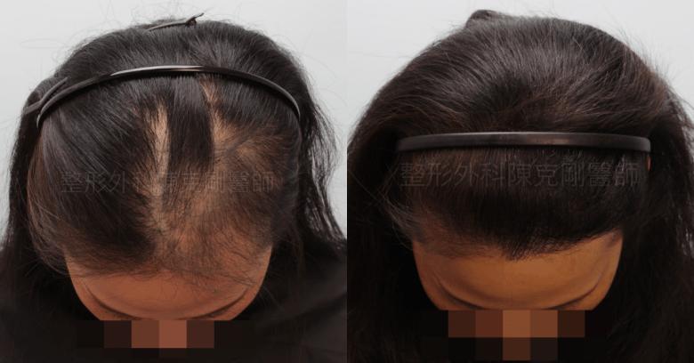 放射線治療後落髮 植髮低頭比較