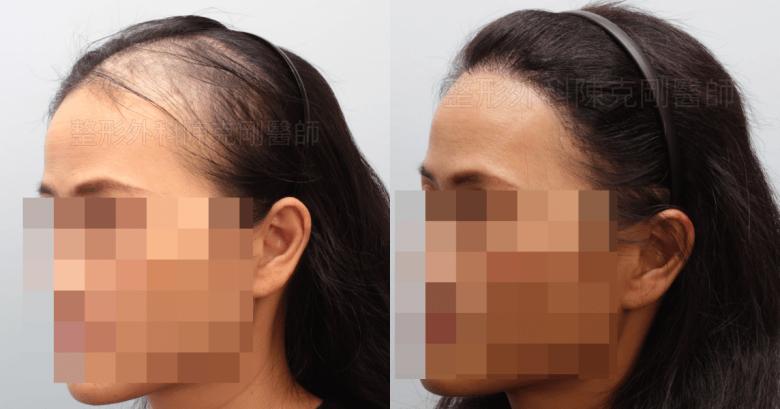 放射線治療後落髮 植髮側面比較