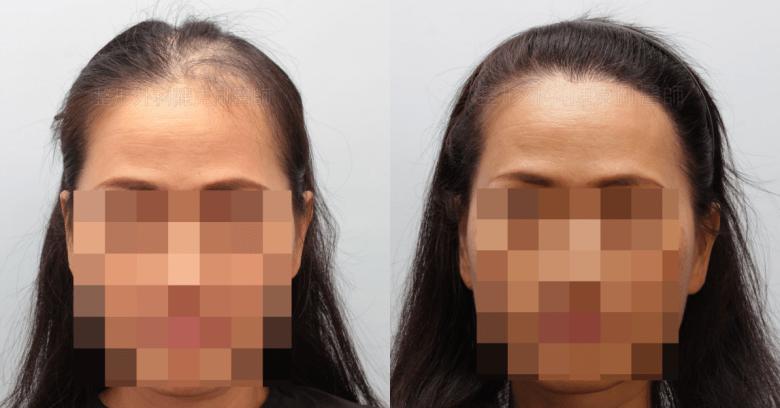 放射線治療後落髮 植髮正面比較