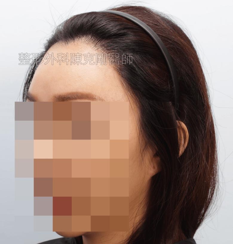 美人尖植髮左側術後一年