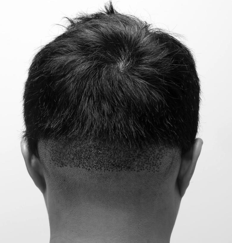 髮線植髮取髮區術後立即