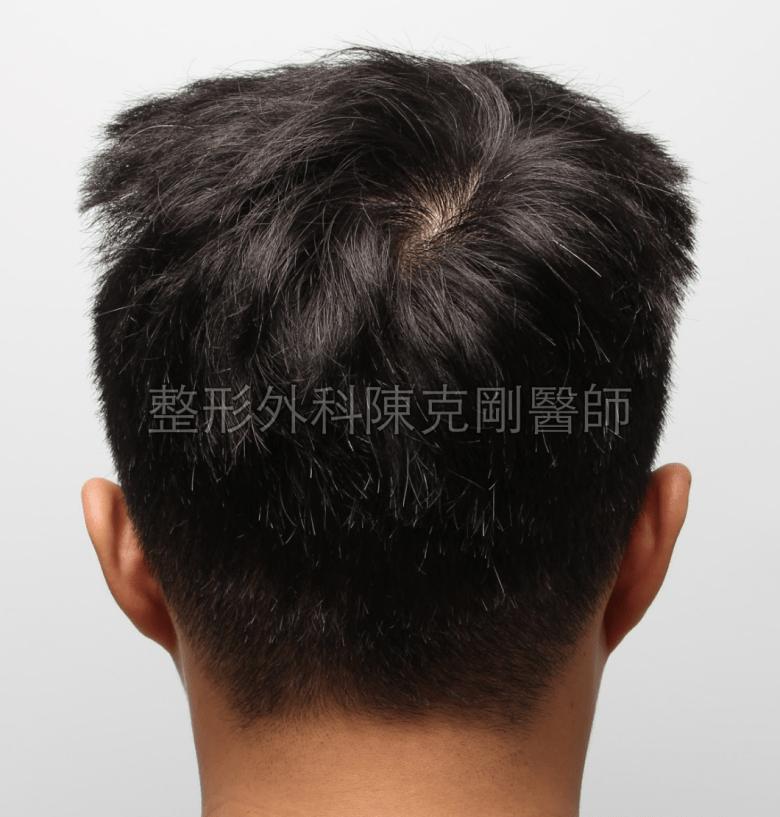 髮線植髮術後七個月取髮區