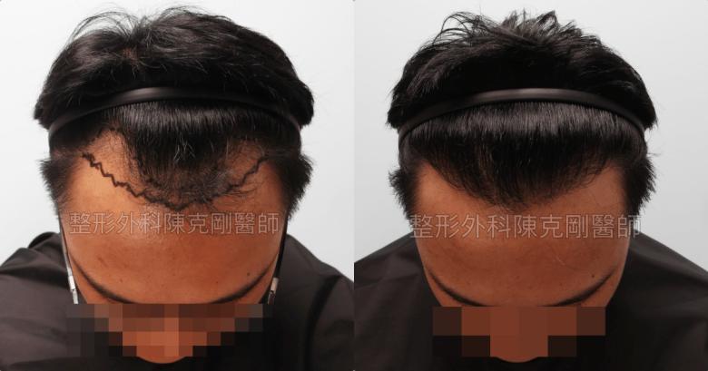 M型禿植髮低頭比較