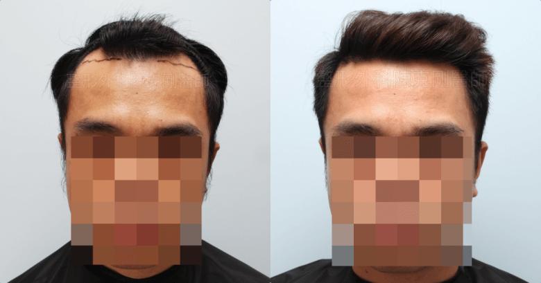M型禿油頭植髮正面比較