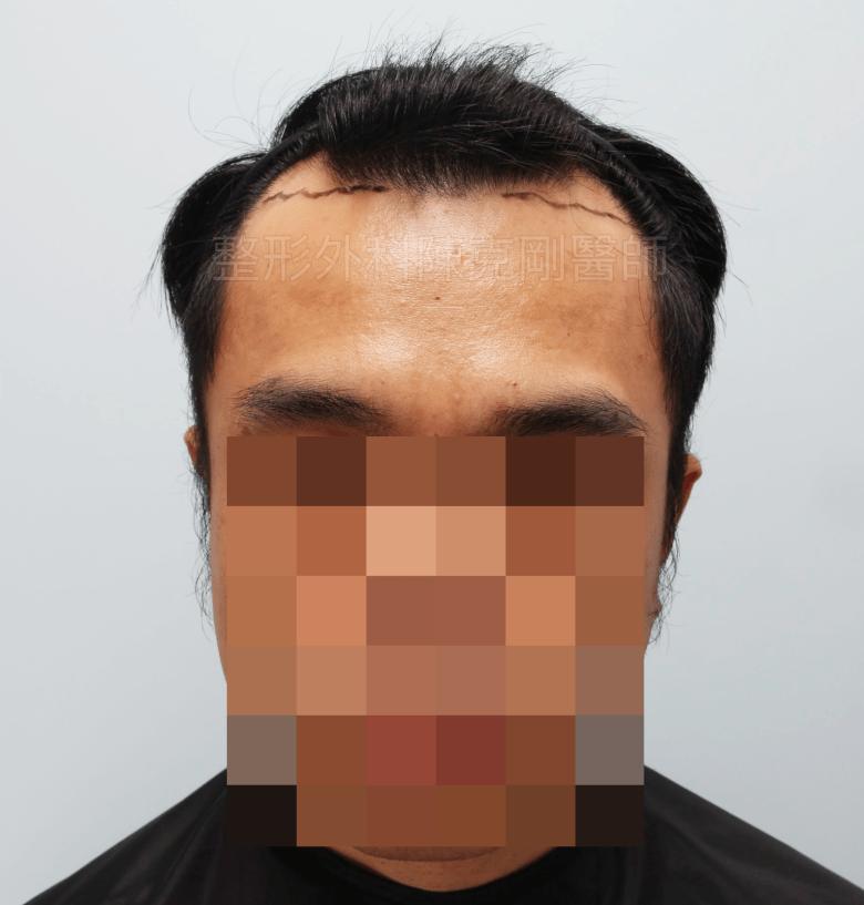 M型禿油頭植髮正面畫線