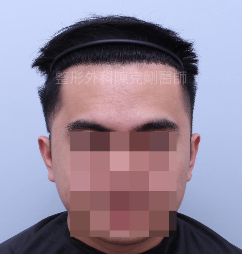 高密度髮線植髮正面術後六個月