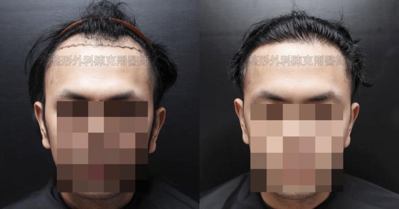 M型禿髮線植髮正面比較