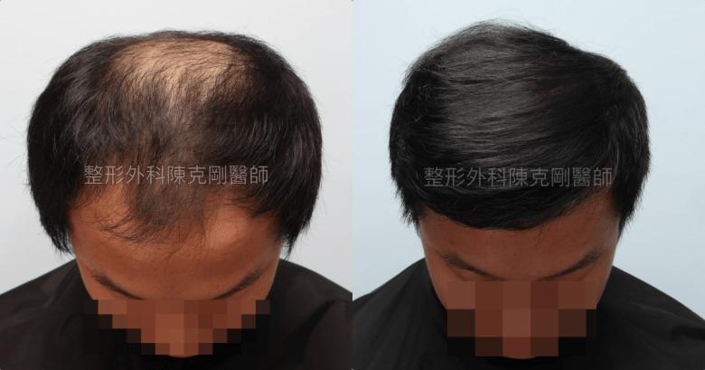 FUE巨量植髮低頭術後一年比較