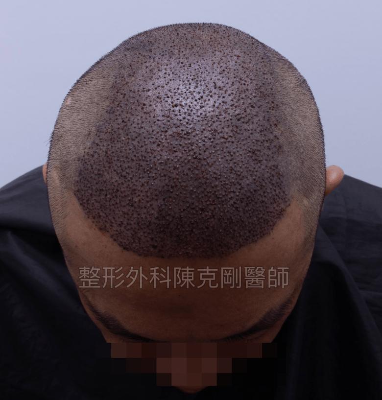 頭皮紋繡巨量植髮低頭術後立即