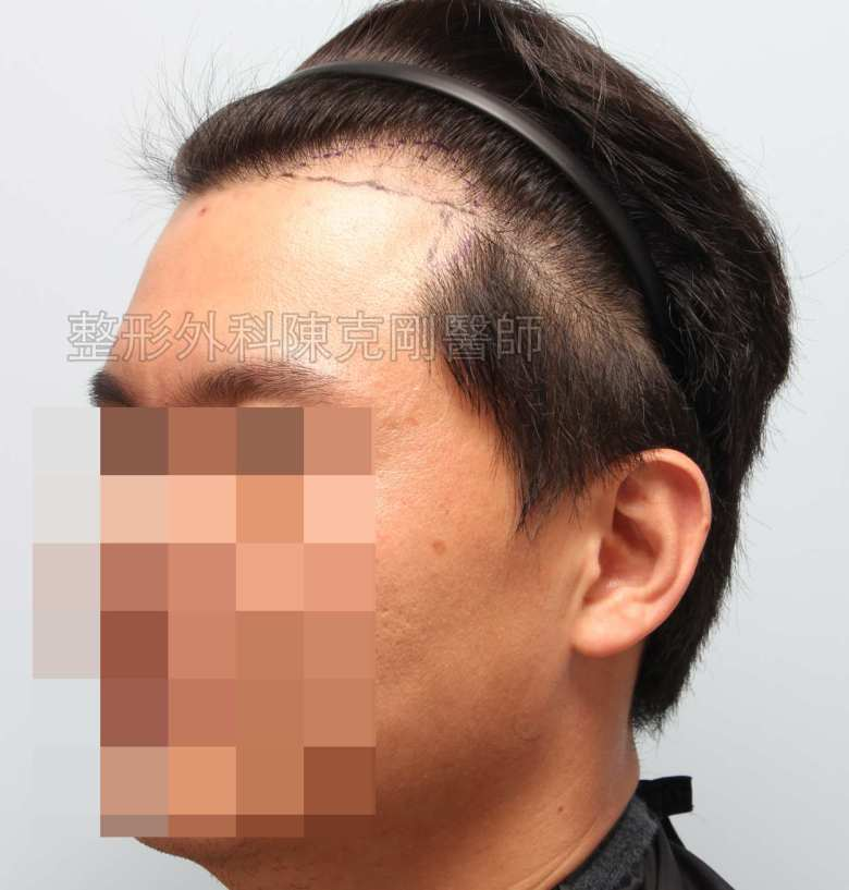 FUE髮線植髮右側畫線