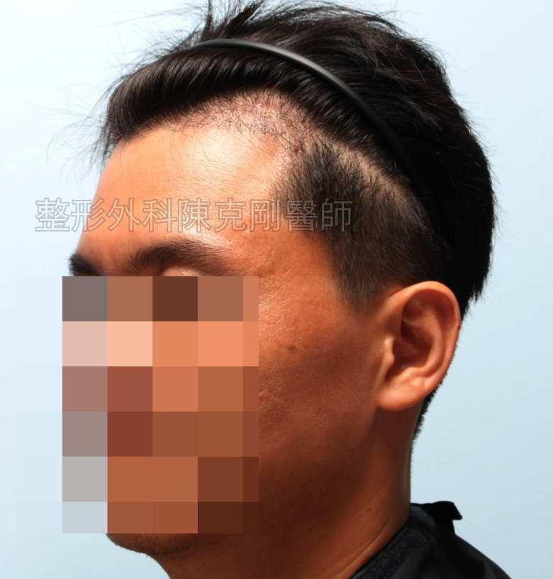 FUE髮線植髮左側術後四個月