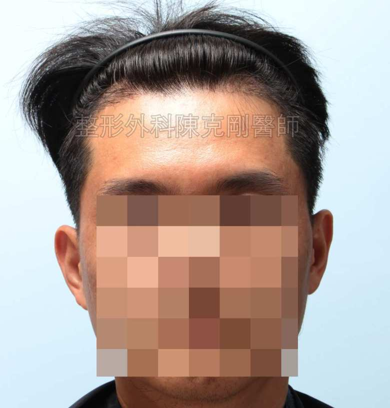 FUE髮線植髮正面術後四個月
