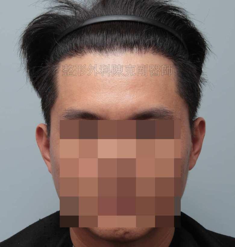 FUE男性髮線植髮術後六個月