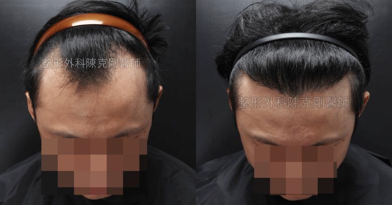植髮術後一年 效果
