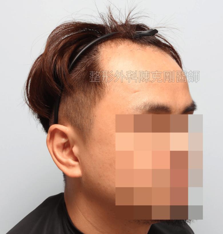 中國大陸植髮失敗重修右側術前