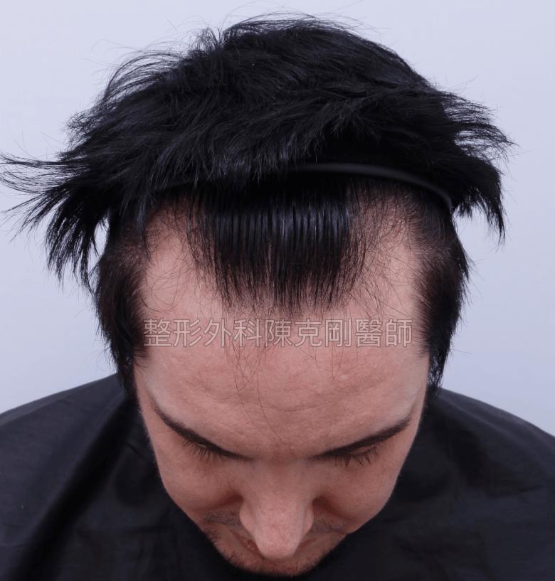 台灣女婿髮線後退植髮低頭術前