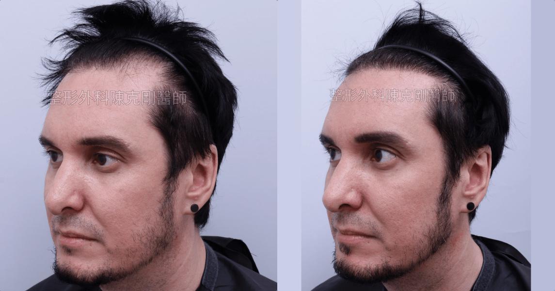 台灣女婿髮線後退植髮左側術後比較