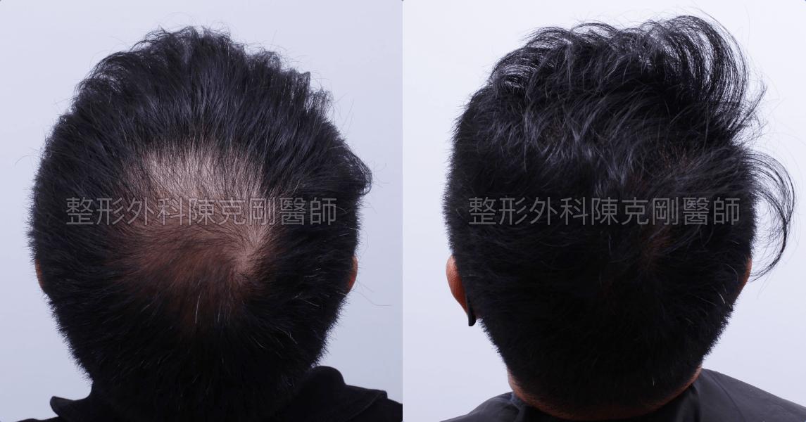 地中海禿頭植髮髮旋術後一年比較