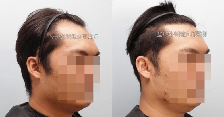 免剃植髮分層剃髮右側術後一年比較