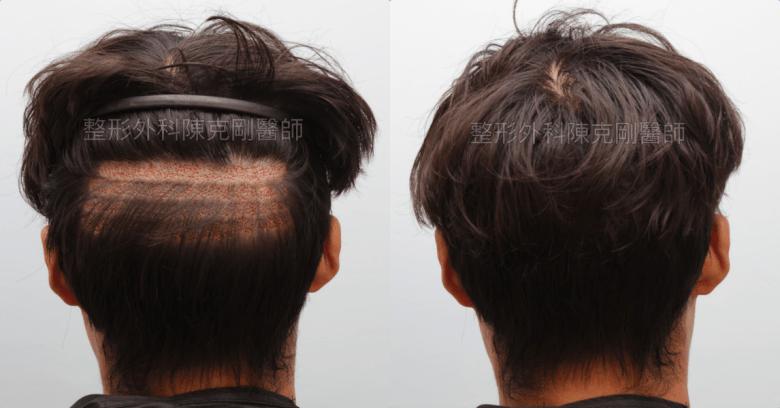 免剃植髮分層剃髮後腦術後立即隱藏手術痕跡