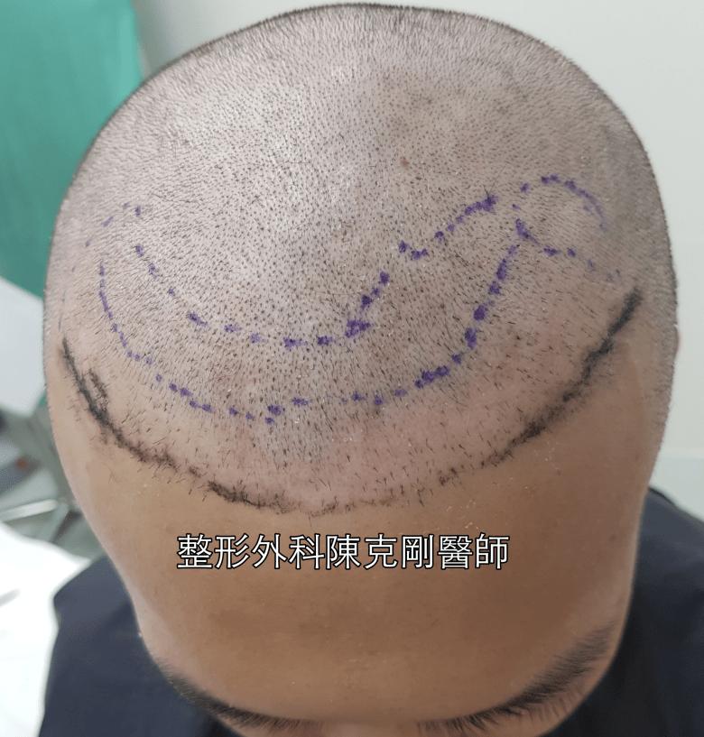 ARTAS植髮機器人失敗二次植髮重修案例種植區特寫