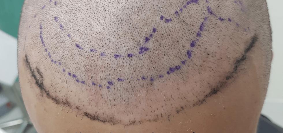 ARTAS植髮失敗二次植髮重修案例種植區特寫