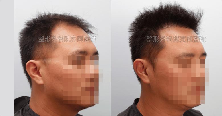 最推薦的植髮方式:FUE巨量植髮右側術後一年比較