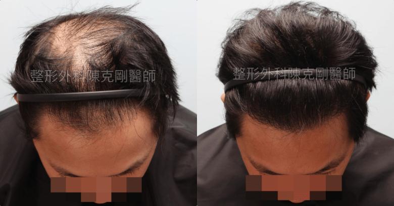 FUT植髮失敗二次植髮重修術後一年低頭髮線比較