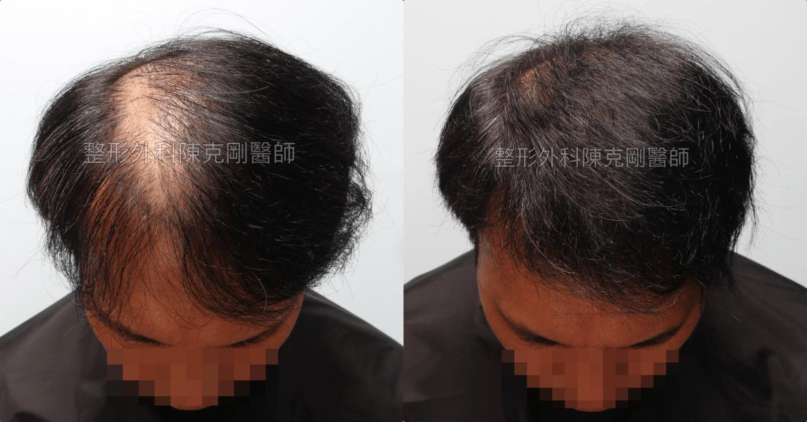 植髮失敗稀疏二次植髮重修手術後六個月低頭比較