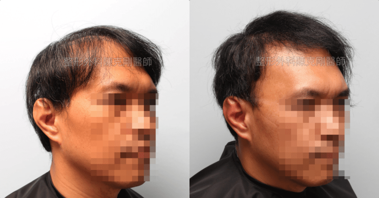植髮失敗稀疏二次植髮重修手術後六個月右側比較