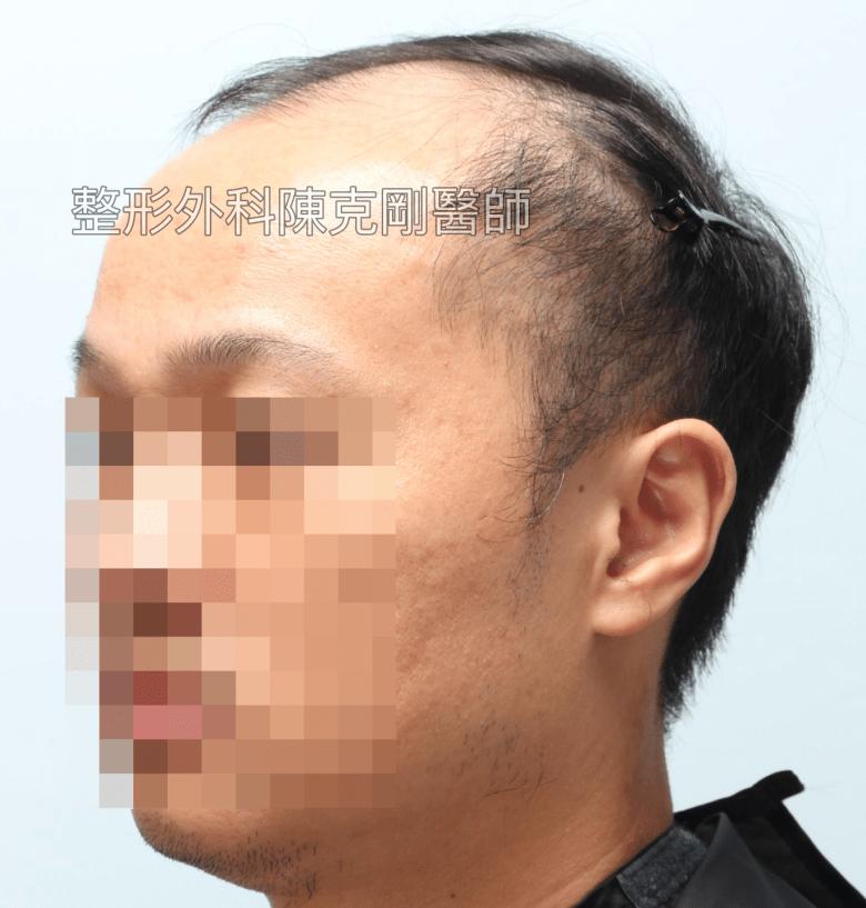 FUE高密度巨量植髮 一次達標頭髮年齡年輕十歲 植髮術前左側