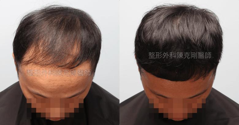 高密度巨量植髮 一次達標頭髮年齡年輕十歲 植髮術後一年三個月低頭比較