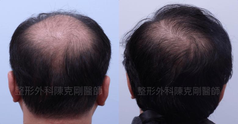 FUE巨量植髮 移植高品質毛囊 植髮手術後一年後腦比較