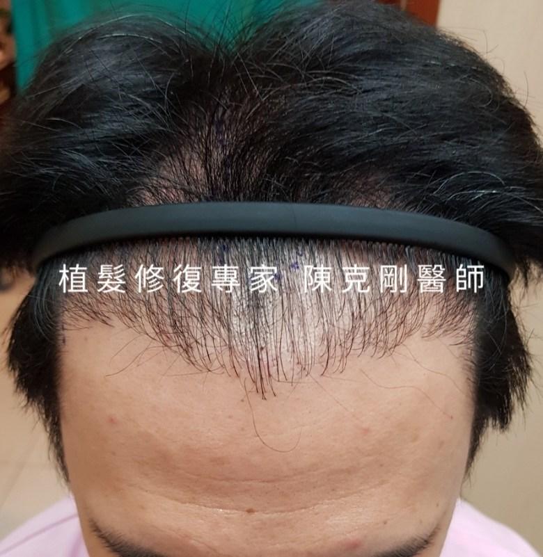 密度不夠的植髮