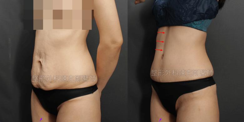 腹部整形手術去除小腹馬甲強化腰線左側術後一個月比較