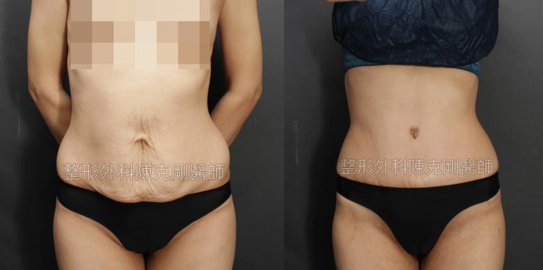 腹部整形手術去除小腹馬甲強化腰線術後1.5月比較