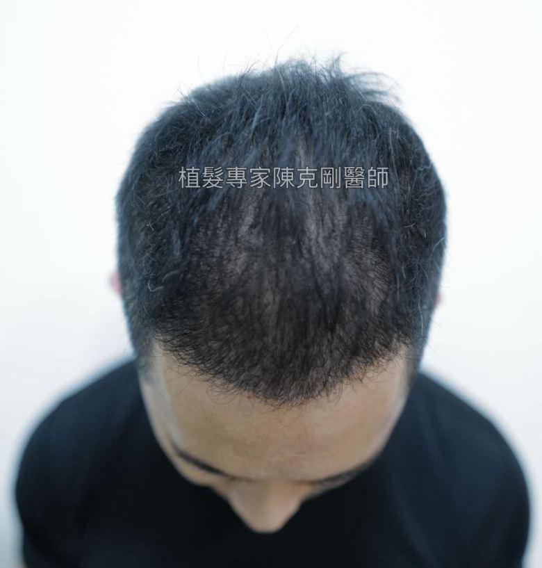 前額植髮 髮線額頭年輕化 台灣植髮專家陳克剛醫師案例分享 植髮手術後六個月低頭
