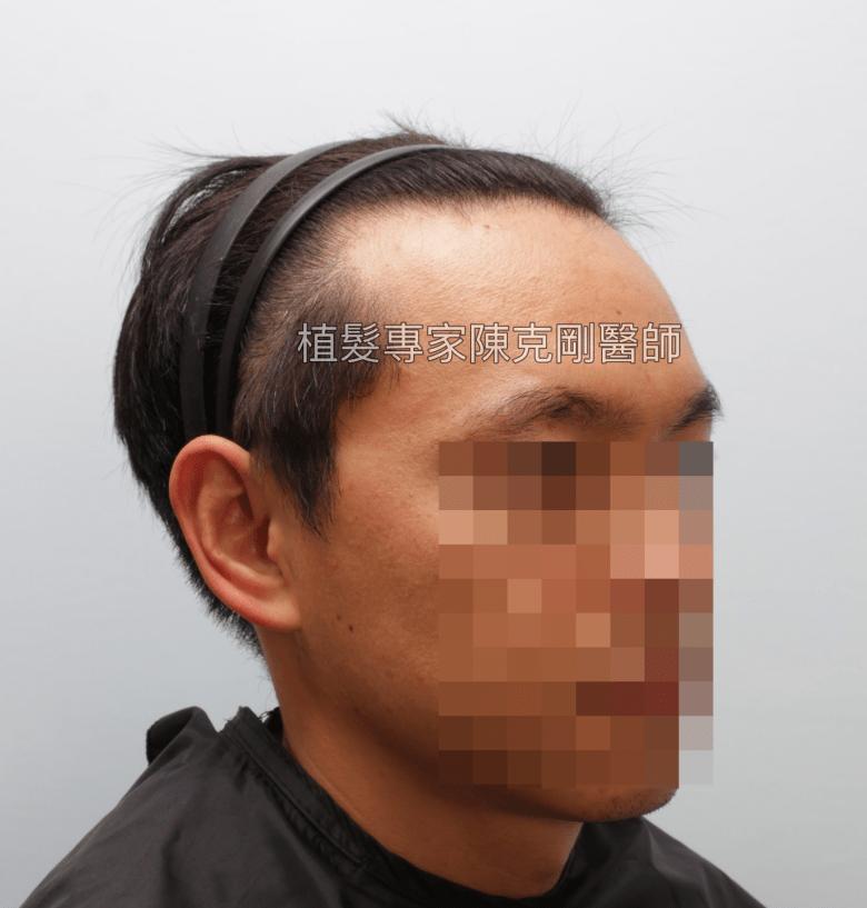 天生高額頭植髮 高雄植髮專家陳克剛醫師案例分享 植髮手術前右側