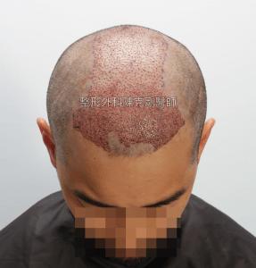高雄植髮專家陳克剛醫師 FUE巨量植髮案例分享 植髮手術後低頭