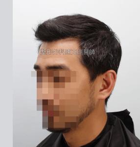 高雄植髮專家陳克剛醫師 FUE巨量植髮案例分享 植髮手術後六個月左側